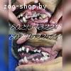 ультразвуковая чистка зубов